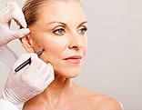 Frau vor einer Schönheitsoperation